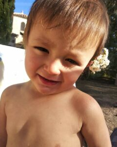 niño con esferocitosis
